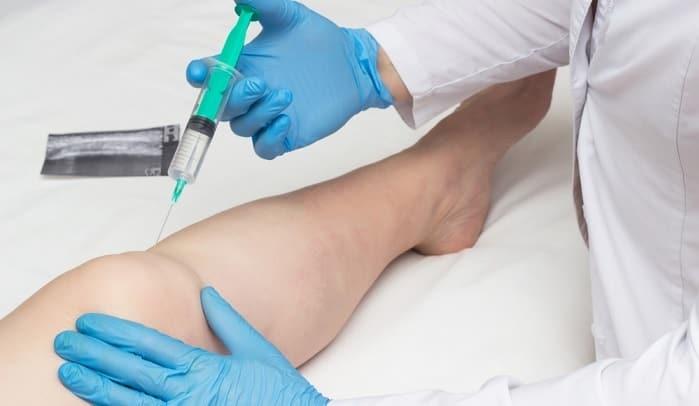 کاندیدا مناسب تزریق ژل هیالورونیک اسید برای درمان استئوآرتریت زانو